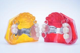 zobu_protezes_reklamas_foto_tooth_dentures10