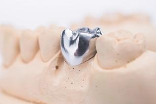 zobu_protezes_reklamas_foto_tooth_dentures12