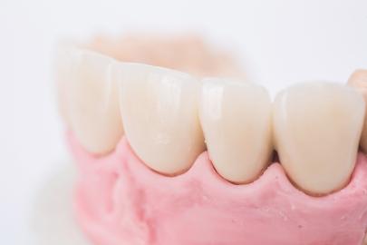 zobu_protezes_reklamas_foto_tooth_dentures18