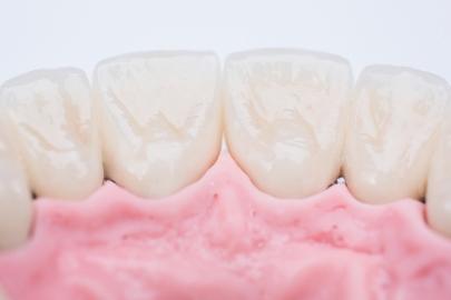 zobu_protezes_reklamas_foto_tooth_dentures19