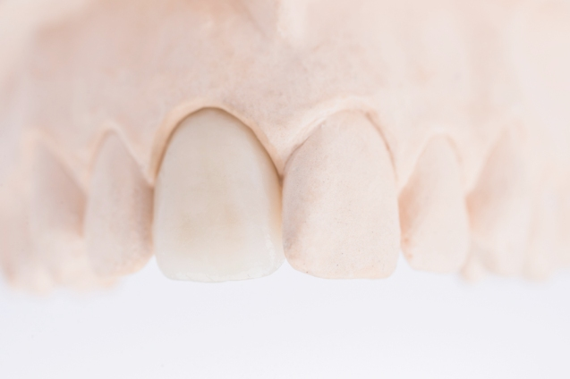 zobu_protezes_reklamas_foto_tooth_dentures22