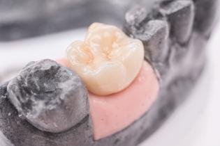 zobu_protezes_reklamas_foto_tooth_dentures24