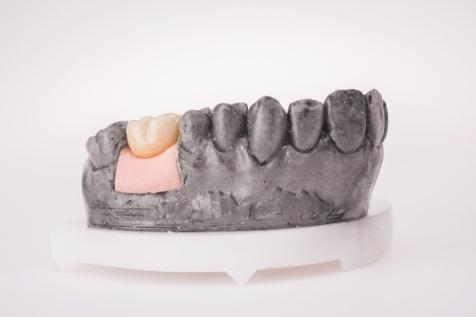 zobu_protezes_reklamas_foto_tooth_dentures25