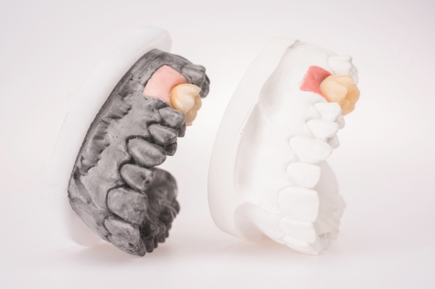 zobu_protezes_reklamas_foto_tooth_dentures27